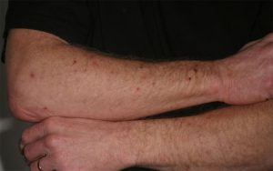 Contact Dermatitis Causes