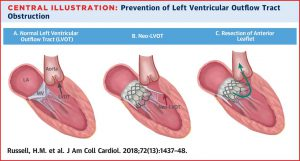 Mitral Valve replacements