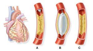Heart Attack Treatments