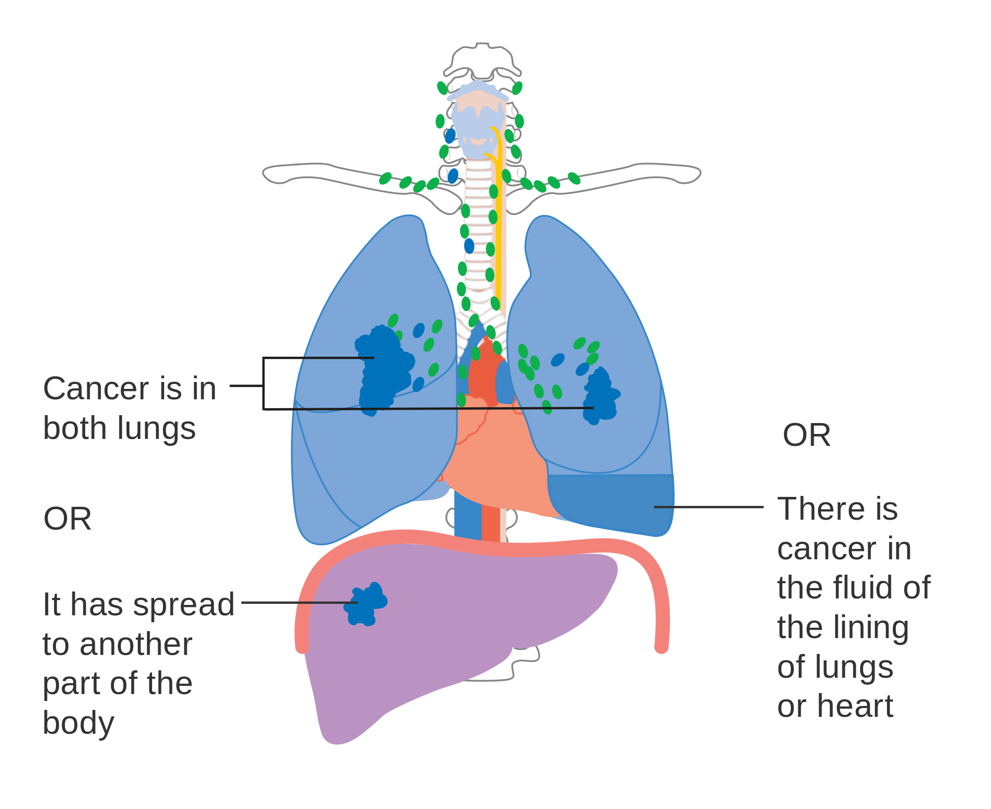 What Are The 4 Types Of Lung Cancer Apollo Hospitals Blog