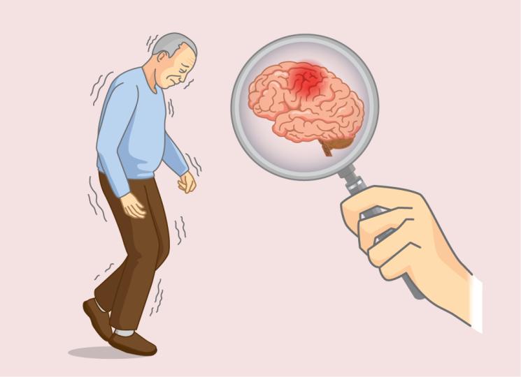Alzheimer's Disease Causes
