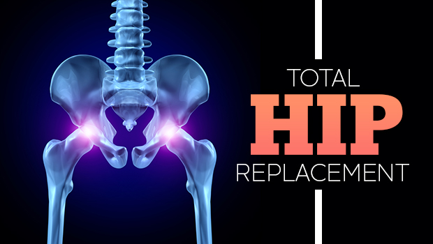 Total Hip Replacement Surgery and Treatment : Ask Apollo