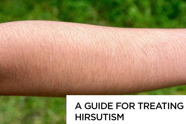 A Guide for Treating Hirsutism