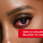 How is Conjunctivitis Related to COVID-19?