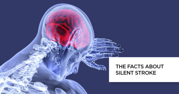 Silent Stroke Symptoms, Causes and Treatment