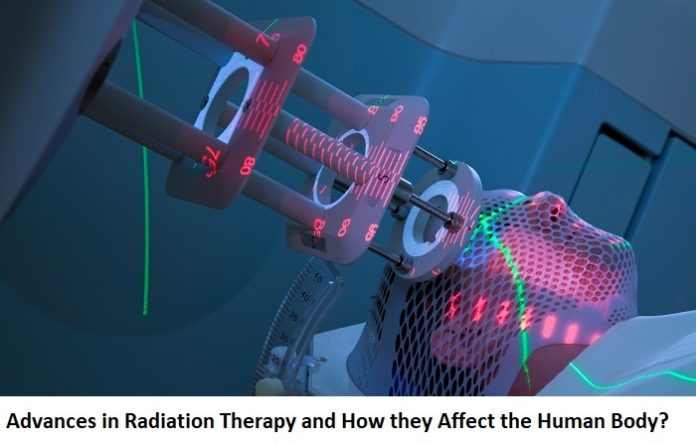 Advances in Radiation Therapy and How they Affect the Human Body