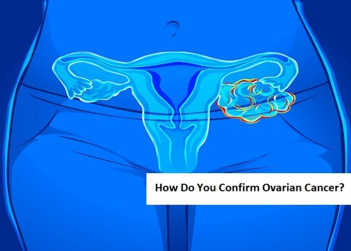 How Do You Confirm Ovarian Cancer