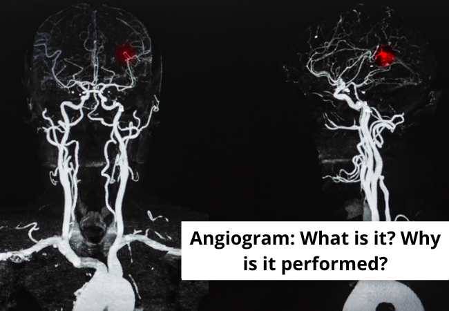 Angiogram What is it Why is it performed
