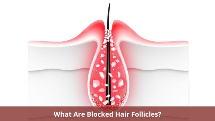 Blocked Hair Follicles