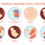 What are the Indications of C SECTION?
