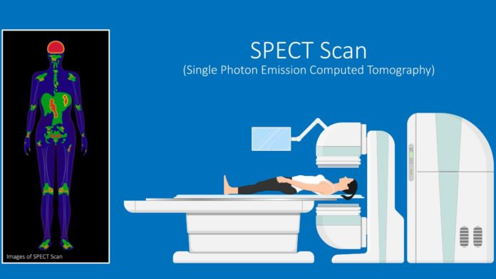 What is a SPECT Scan Commonly Used For